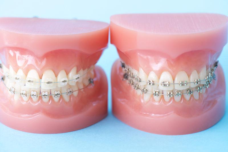 歯並びが気になる方へ(矯正治療)